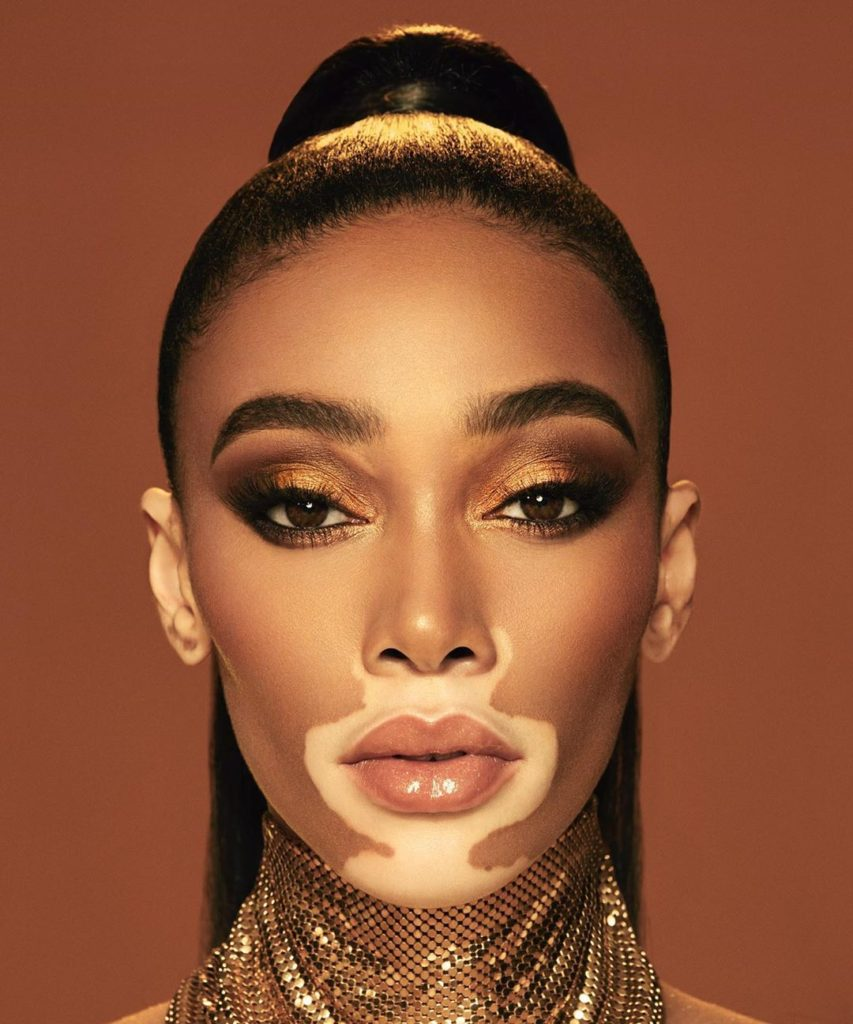 Winnie Harlow 853x1024 - Winnie Harlow Net Worth, Pics, Wallpapers, Career and Biograph