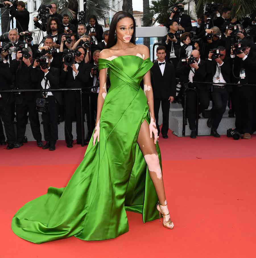 Winnie Harlow Hot Green Gala Dress - Winnie Harlow Net Worth, Pics, Wallpapers, Career and Biograph