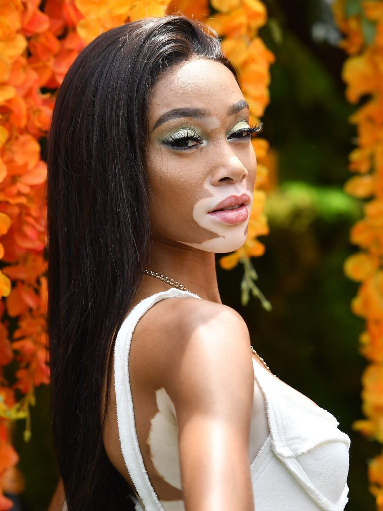 Winnie Harlow White Dress Pics 768x1024 - Winnie Harlow Net Worth, Pics, Wallpapers, Career and Biograph